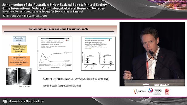 Emerging concepts in immunopathogenesis of ankylosing spondylitis Dr Tony Kenna