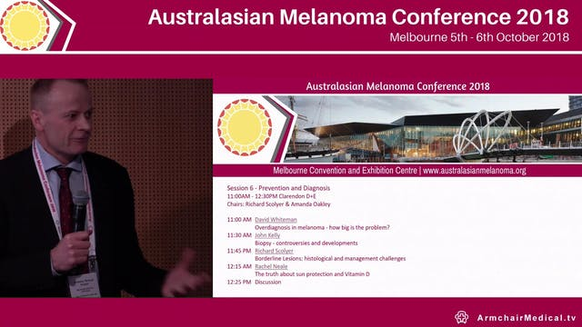 Overdiagnosis in melanoma - how big i...