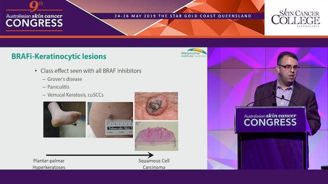 The evolving landscape of systemic therapy treated melanoma Assoc Prof Matteo Carlino