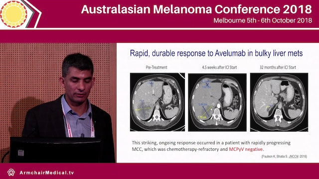 Curing Merkel cell carcinoma Progress and Challenges Shailender Bhatia