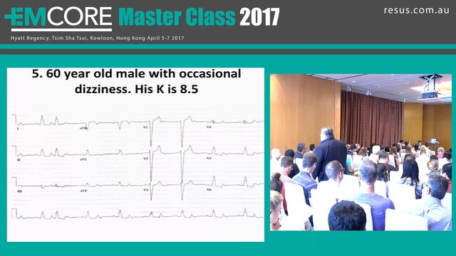 ECG Test Assoc Prof Peter Kas