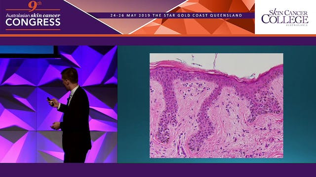 Should pathologists be better at grading melanocytic lesions Dr Blake O'Brien