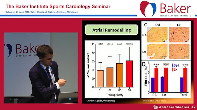 Atrial fibrillation and endurance athletes Dr Adrian Elliott