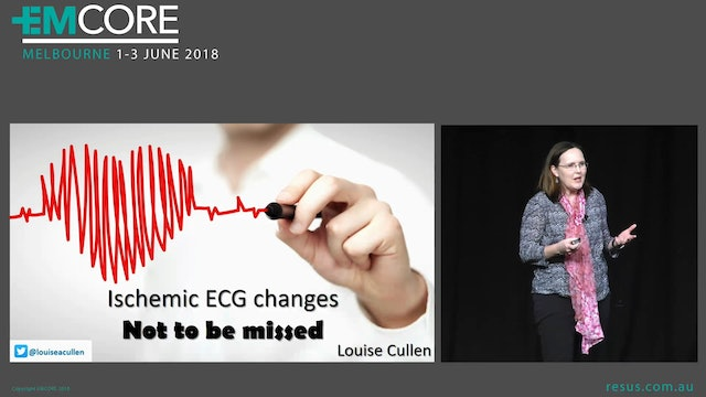Ischaemic ECG Changes not to be missed Prof Louise Cullen