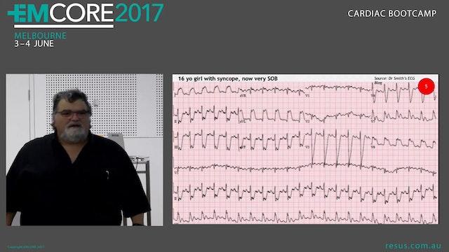 Paediatric ECG Assoc Prof Peter Kas