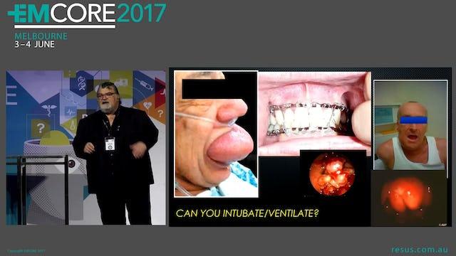 Awake intubation Assoc Prof Peter Kas