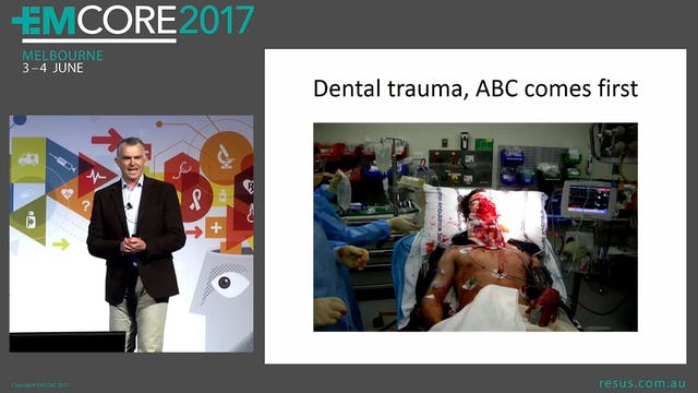Dental Trauma Assoc Prof Alastair Meyer Director EM Casey Hospital