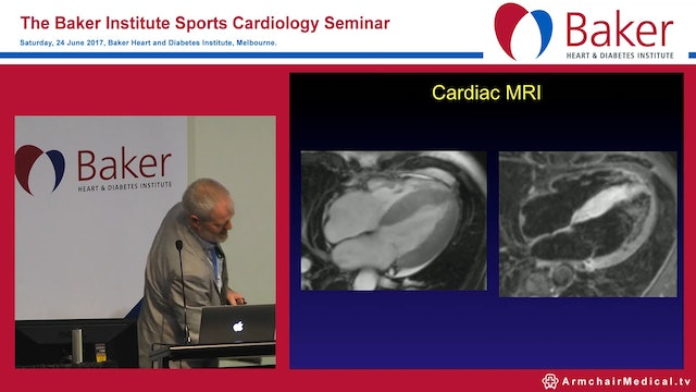 Case: Chest pain in an athlete Assoc Prof David Prior