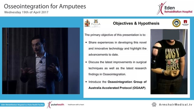 1 Osseointergration for Amputees Assoc Prof Mujed Al Muderis