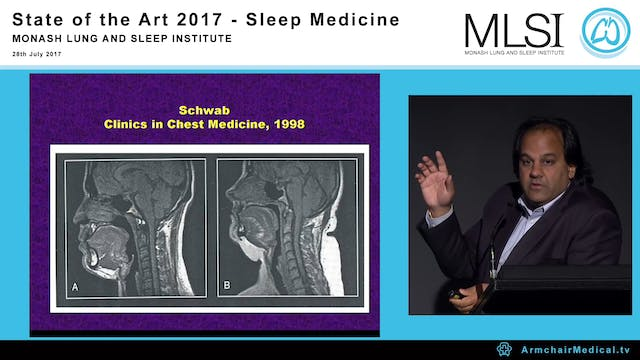 Future of Sleep Apnea Therapy Prof Atul Malhotra