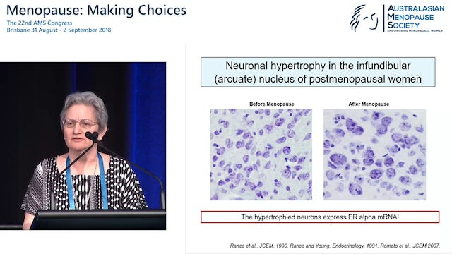New advances in understanding the aetiology of hot flushes Prof Naomi Rance