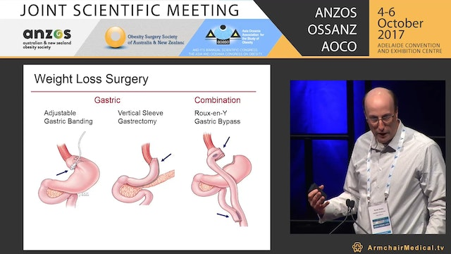 OSSANZ Surgical - Sleeve gastrectomy All you need to know Ahmad Aly, Randy Seeley, Anthony Clough, Francesco Rubino, Steven Kelly, John Jorgensen, Kelvin Higa, Michael Booth, Jason Free, Jason Maani, Michael Talbot and Nazy Zars