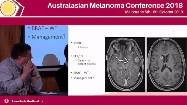 Brain and Leptomeningeal Meatastases Panel Discussion