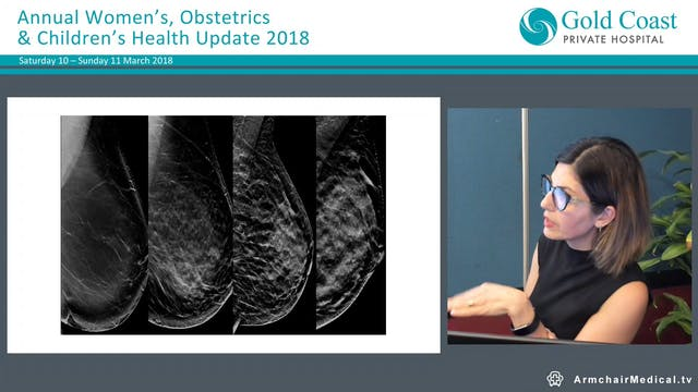 Breast Imaging Dr Shohreh Rezai, Radiologist (Queensland X-Ray)