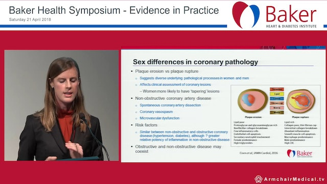 Gender, Sex and Cardiovascular Disease Dr Anna Beale