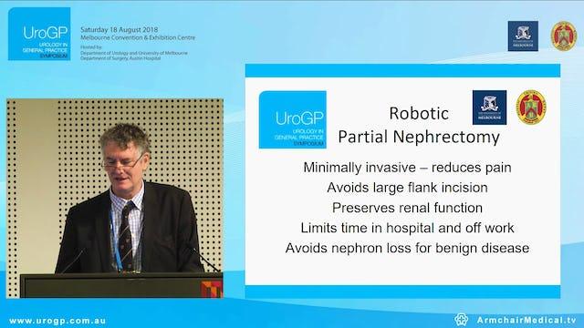 Robotic surgery in Urology, Prof Damien Bolton