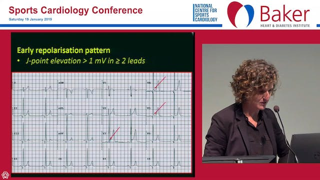 Athlete ECG interpretation Maria Brosnan