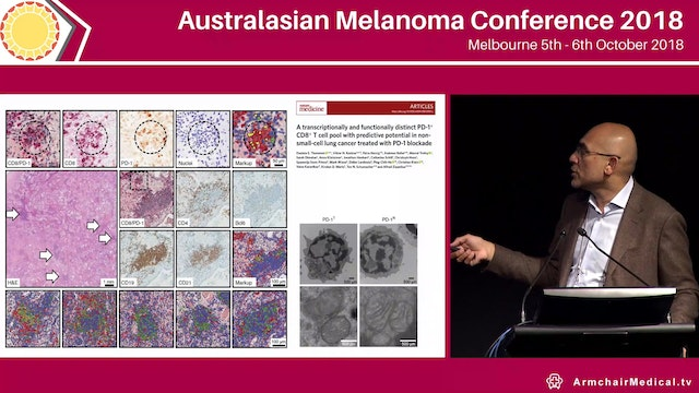 Turning cold tumours hot with intralesional therapy in melanoma Adil Daud