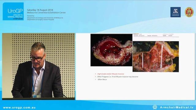 Bladder Cancer and the GP involvement Assoc. Prof Nathan Lawrentschuk