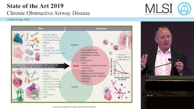 Treatment of COPD The Future Prof Klaus Rabe