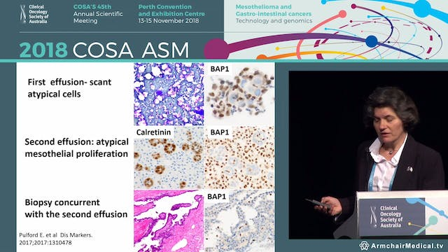 Controversies in mesothelioma Biposy or cytological diagnosis Sonja Klebe & Amanda Segal