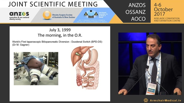 The surgical treatment of diabetes - Prof Francesco Rubino