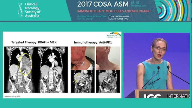 Predicating response and resistance in drug therapy for advanced melanoma Prof Georgina Long