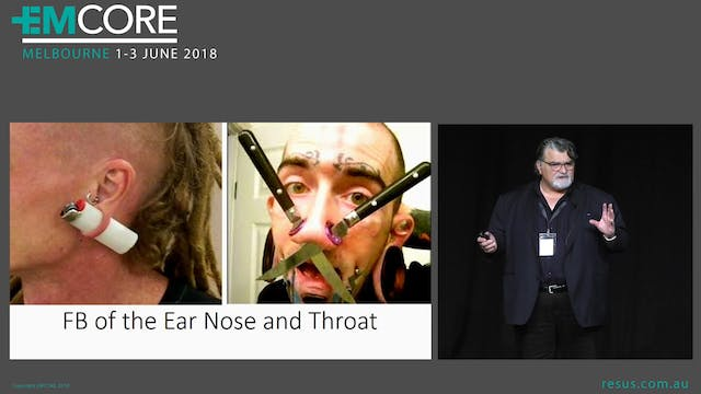 Foreigh body of Ear Nose and throat Assoc Prof Peter Kas