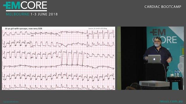 Paediatric heart conditions and Paediatric ECG Assoc Prof Peter Kas