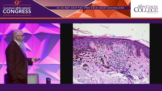 Histopathology for the practicing dermoscopist Dr Chris Wetherall