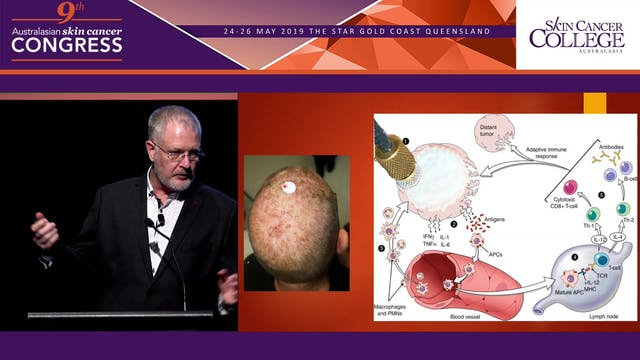 PDT Basics & Improving the outcome of topical treatments Dr Franz Strydom