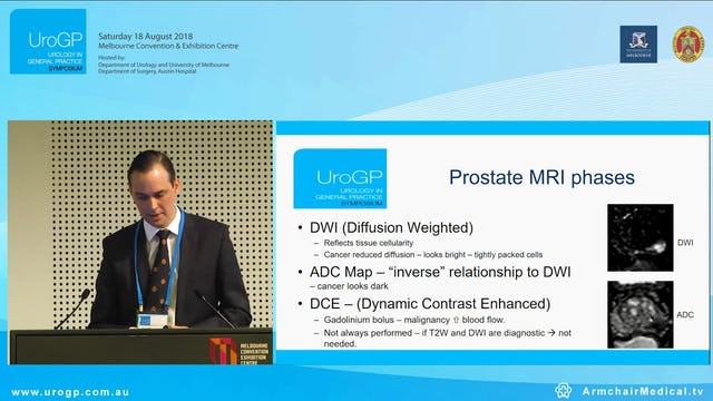 Prostate MRI New Item numbers, Case presentation, Dr Bradley Newell