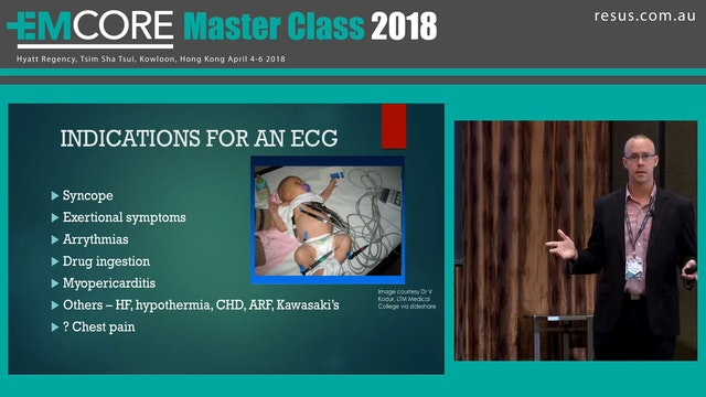 The Paediatric ECG Dr Adam Michaels