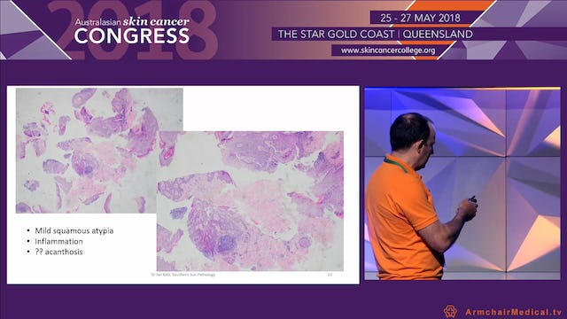 Choosing the most appropriate skin cancer pathology specimen Dr Ian Katz