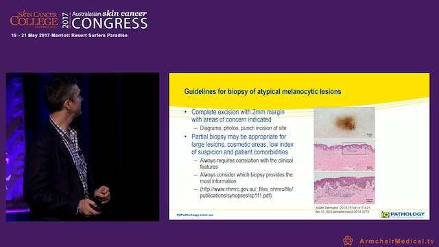 Biopsy and excision of melanocytic lesions Not drowning, wavin Dr Duncan Lambie