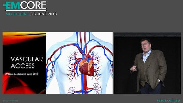 Vascular access Dr Will Davies