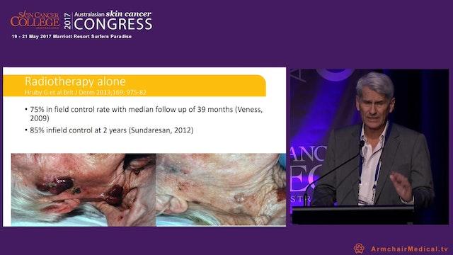 Merkel cell carcinoma of skin A rare ...