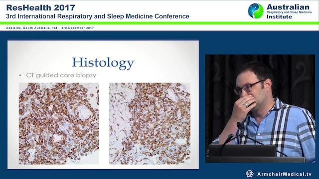 Case Rapidly Progressive Lung Disease Dr Chris Langton