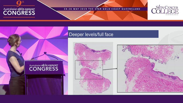 Understanding the language of histopathology Dr Sarah Wallace