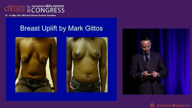 How to think like a cosmetic surgeon Dr Mark Gittos