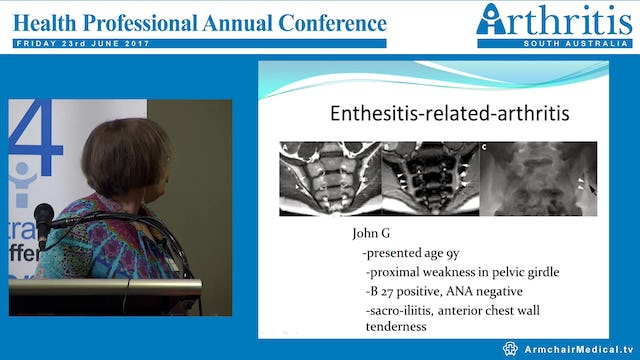 Juvenile Idiopathic Arthritis- management and research update Dr Christina Boros – Paediatric Rheumatologist