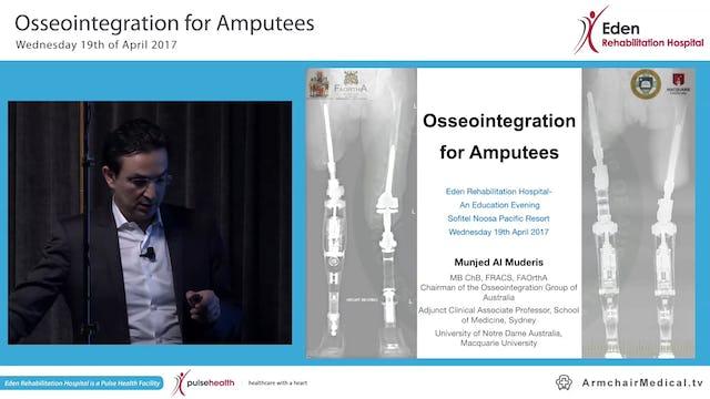 Osseointegration for Amputees Associate Professor Munjed Al Muderis