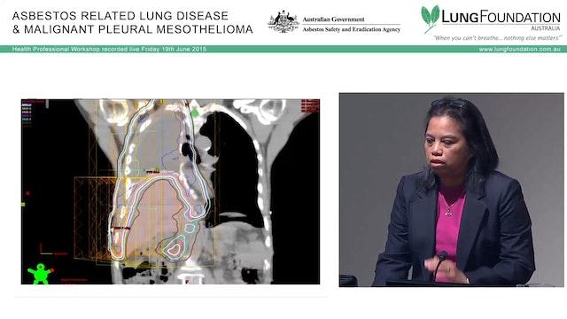 Mesothelioma Radiotherapy Dr Mo Mo Tin