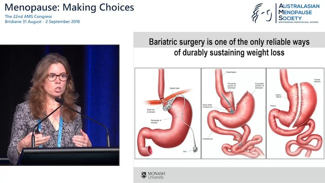 Bariatric surgery – positive and negative consequences Prof Wendy Brown
