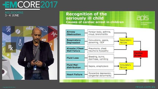 Paediatric resuscitation Dr Arjun Rao Emergency Physician Sydney Children's Hospital