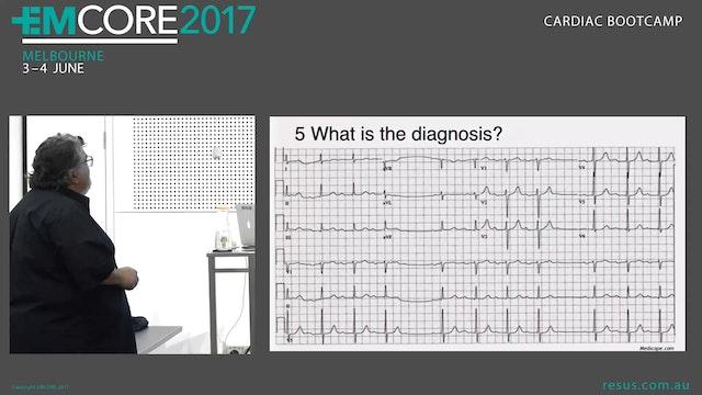 ECG Quix Answers