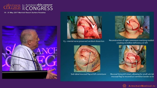 Wound management of the lower limb A plastic surgeons perspective Clin Assoc Prof Felix Behan