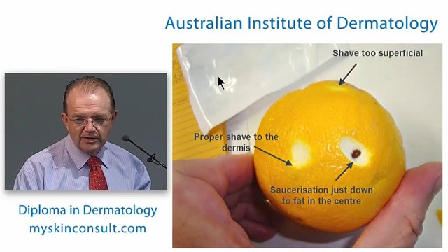 Skin Biopsies Dr. Ian McColl John Fly...