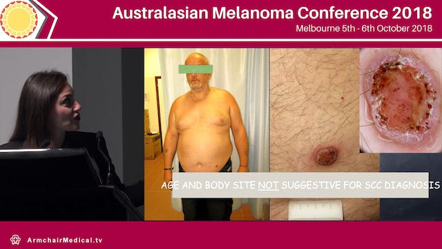 How to distinguish benign imitators of melanoma with dermoscopy Caterina Longo