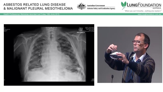 The spectrum of asbestos-related lung and pleural disease Dr Matthew Peters